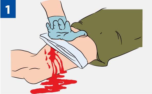 Надавливание на рану
